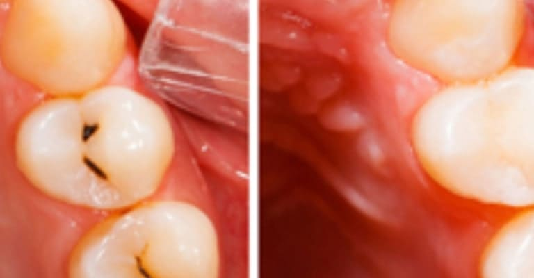 Dental Fillings - Miami or Coral Gable Dental Office