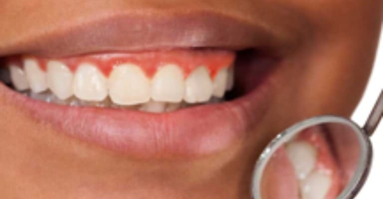 Periodontal Treatment - Miami or Coral Gable Dental Office